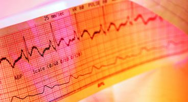 Heartbeat as Password to Access Electronic Health Records