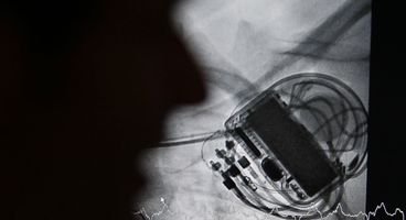 Three reasons why pacemakers are vulnerable to hacking